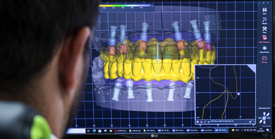 DLS - Dental Labor Software 1